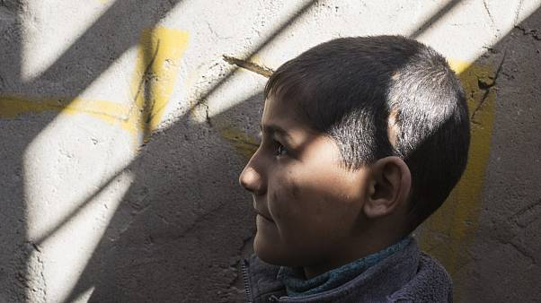 A child in Iraq who was struck in the head with shrapnel