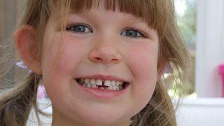أسنان الأطفال وعلاقتها بالصحة العقلية