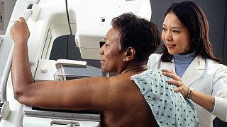 آلمان؛ ابداع روش تشخیص دقیق ابتلا به سرطان پستان از طریق آزمایش خون