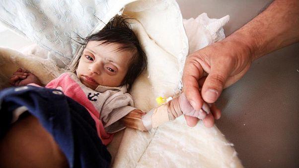 Yemen'de 20 milyon kişi sağlık hizmetlerinden mahrum ve yeteri kadar beslenemiyor
