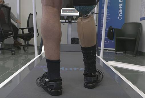 Two robots could make lives of amputees easier
