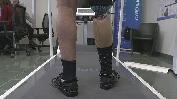 Robotische Prothesen verbessern die Lebensqualität von Amputierten