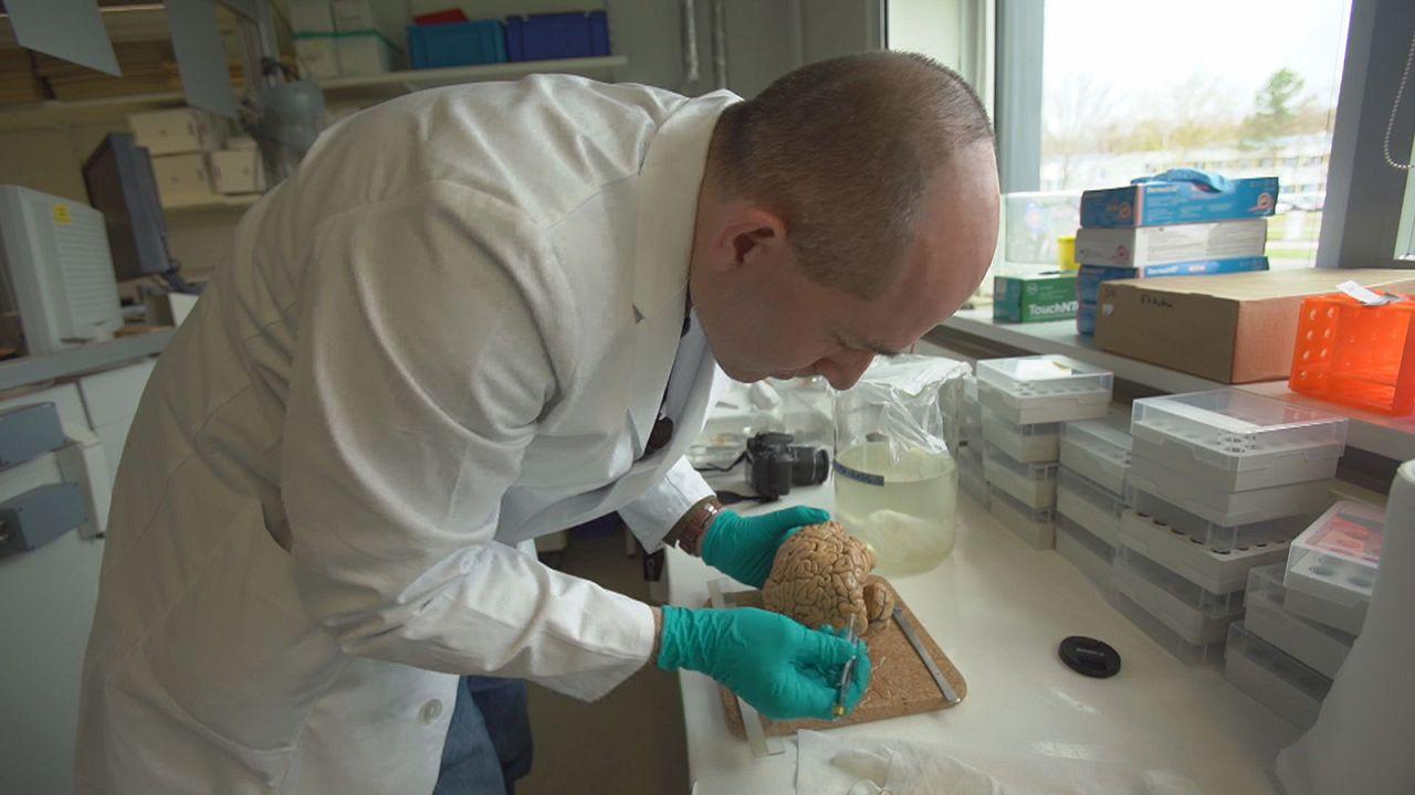 Cientistas europeus cortam cérebro em sete mil partes