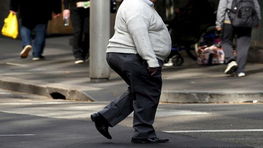 دراسة جديدة تكشف العلاقة بين البدانة ومرض الزهايمر
