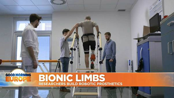EU-funded prosthesis aims to make life easier for amputees