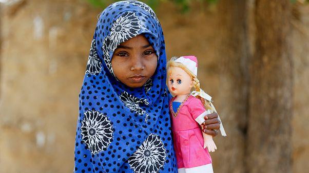 الفتاة اليمنية عفاف ابنة العشر سنوات التي تعاني من سوء تغذية