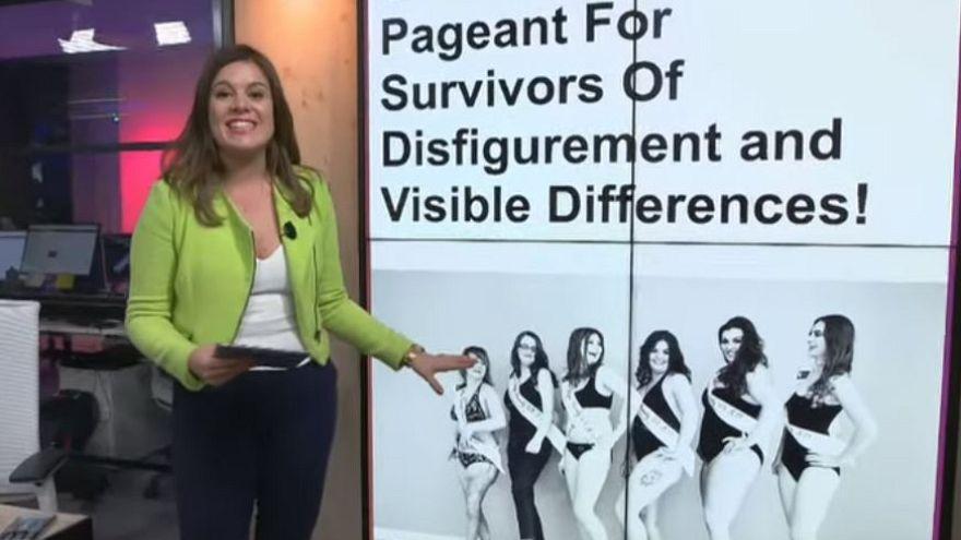 Unique beauty pageant launches for survivors of disfigurement | #TheCube