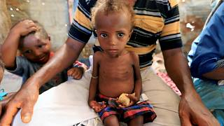 A malnourished girl sits on her father's lap in Hodeidah, Yemen