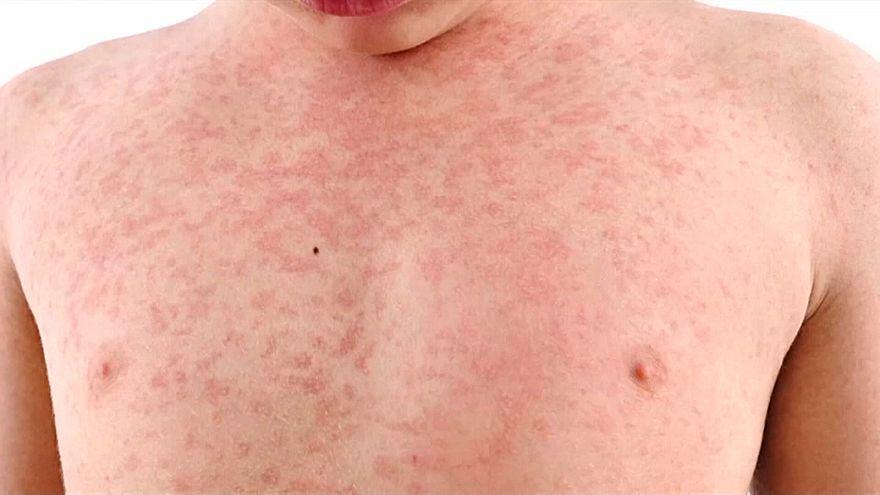 Έξαρση της ιλαράς στις ΗΠΑ