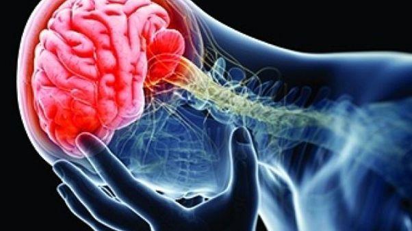 LATE: Alzheimer'a çok benzeyen ancak farklı nedenlere sahip olan bunama hastalığı