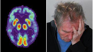 علماء يحددون مرضا جديدا يصيب المسنين شبيه بالزهايمر