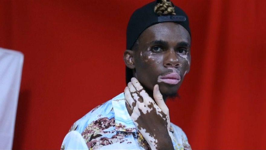 شاهد: عارض أزياء تنزاني مصاب بالبهاق يجد في بشرته مصدرا للتفرد