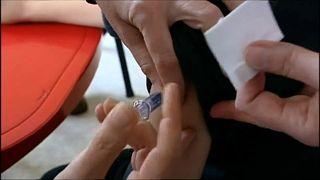 EU-Gesundheitsbehörde warnt vor Masern-Epidemie
