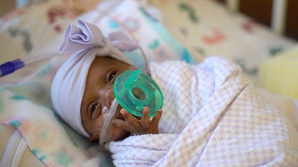ABD'de 245 gram doğan dünyanın en küçük bebeği mucizevi şekilde hayata tutundu