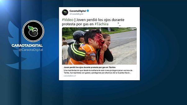 La tragedia del adolescente ciego por tiros de la Policía en Venezuela