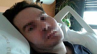 وفاة الفرنسي فانسان لامبرت إثر فصل أجهزة الإنعاش عنه بعد عقد من الزمن