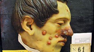 Egy 25 éves, szifiliszes férfi viaszból készült miniantűrája egy párizsi múzeumban