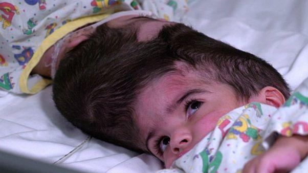 Zwillingsmädchen Safa und Marwa: Am Kopf zusammengewachsen