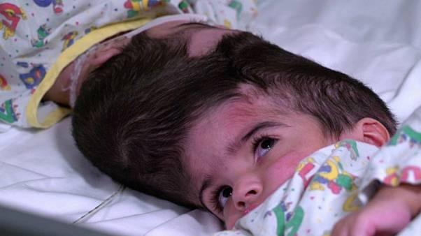 Safa and Marwa were craniopagus twins — fused at the head.