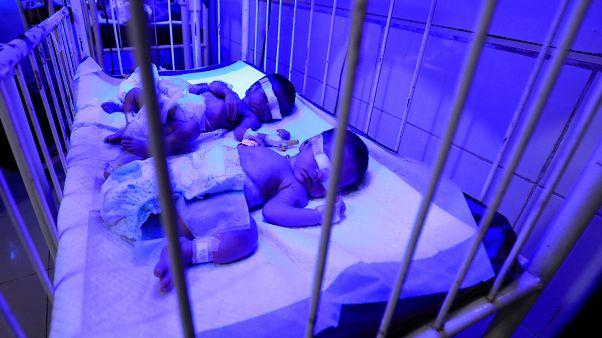 Türkiye'de bebek ölüm oranları AB ortalamasını yaklaşık üçe katladı (Eurostat)