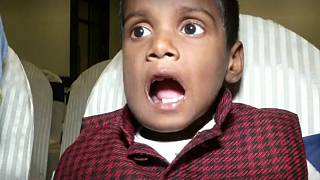 کودک هفت ساله هندی ۵۲۶ دندان اضافی داشت
