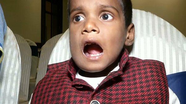 شاهد: اقتلاع أكثر من 500 سن وضرس من فم طفل في السابعة