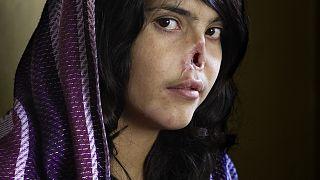 El retrato de Bibi Aisha, ganador del World Press Photo en 2010.