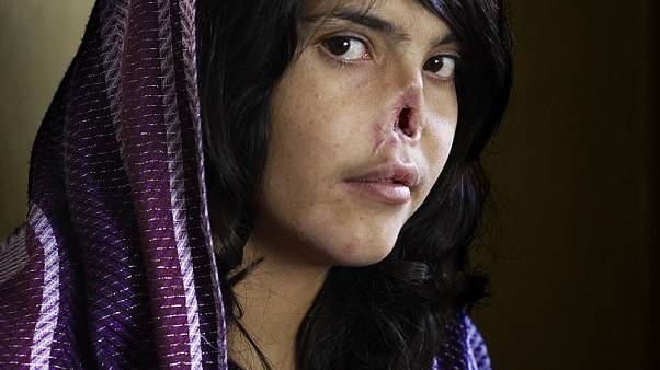Portrait de Bibi Aisha - Prix World Press Photo of the Year 2010