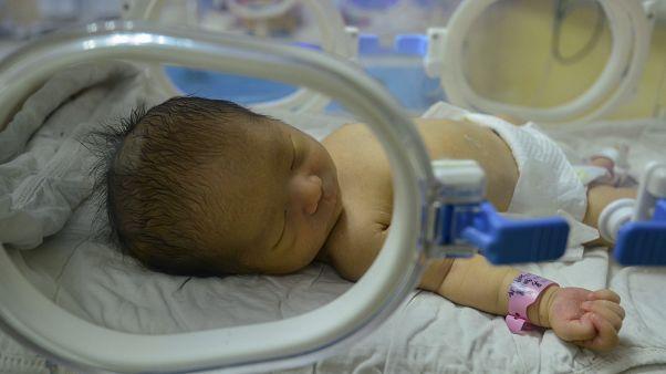 Çekya: Beyin ölümü 117 gün önce gerçekleşen kadın doğum yaptı