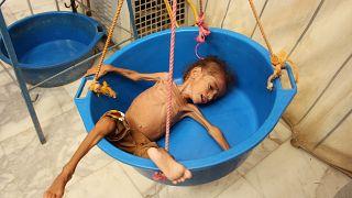 Yemen'de muayene öncesi hastanede tartıya alınan bir çocuk