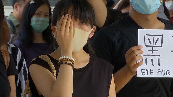 Hong Kong'da eylemlerde yaralanan kadın, hastane raporlarını okuyan polisi mahkemeye verdi