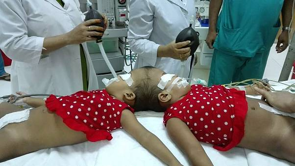 Stabil az állapota a bangladesi kislánynak, akit magyar orvosok választottak el sziámi testvérétől