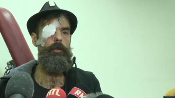 Yellow vest protester blames police after suffering serious eye injury