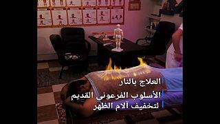 """مصر: إن كنت تعاني من آلام الظهر.. فيمكنك علاجه بتقنية """"التدليك الناري"""""""