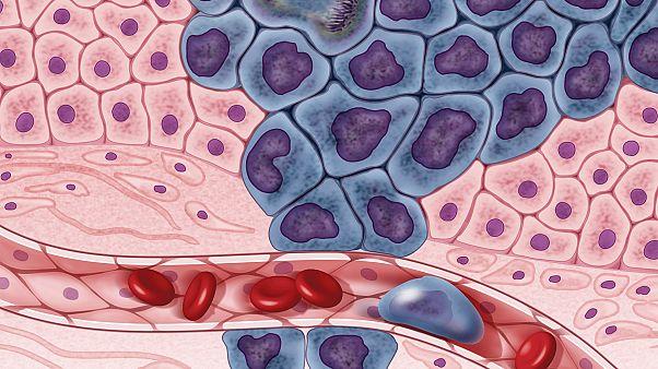 Kanser hücreleri illüstrasyonu