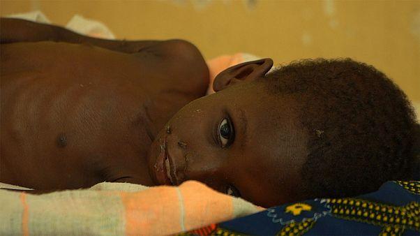Детское недоедание в Нигере: две истории