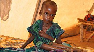 یونیسف: یک سوم کودکان جهان از سوءتغذیه یا اضافه وزن رنج میبرند