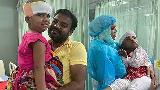 A bangladesi sziámi ikrek másik tagja is elhagyhatta az intenzív osztályt