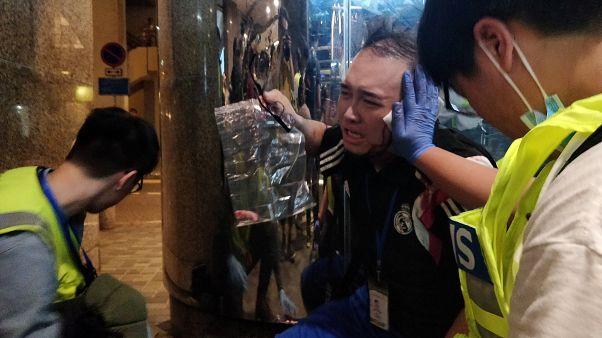 Hong Kong: Homem arranca orelha a político pró-democracia