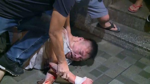 В Гонконге депутату откусили ухо