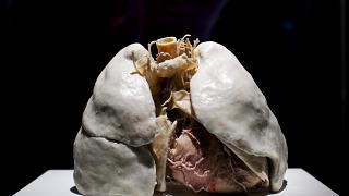 Nemdohányzó ember tüdőpreparátuma az emberi szervezet felépítését, működését bemutató Az emberi test (The Human Body) című kiállításon