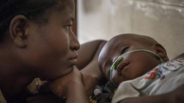Her 39 saniyede bir çocuk zatürre yüzünden ölüyor: Çoğu yaşamının ilk aylarında