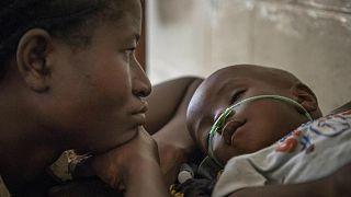 """""""يونيسف"""":  الالتهاب الرئوي يقتل طفلاً كل 39 ثانية"""
