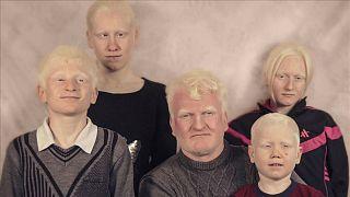 Türkiye'nin Albino çocukları: Eğitimden sağlığa sorunlar zinciri
