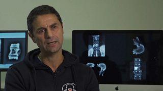 Primo trapianto mondiale di vertebre. Nuovo record del Rizzoli