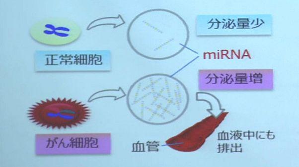 اليابان تطور اختبارا للدم يكشف بدقة عن أنواع عدة من السرطانات خلال ساعات