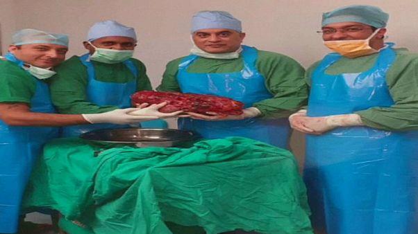 شاهد: أطباء في الهند يستأصلون كلية مريض تزن 7.5 كيلوغرام