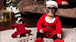 """Kind mit """"Batman-Maske"""": Luna aus Florida in Russland behandelt"""