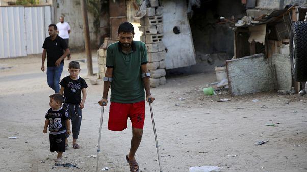 Gazze Şeridi'nde düzenlenen protestolar sırasında İsrail askerlerinin ateşinde ayağını kaybeden Filistinli Ziad el Medeni