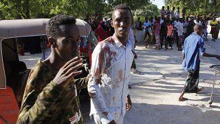 Somali'nin başkenti Mogadişu'da bombalı saldırı: 2'si Türk en az 78 ölü